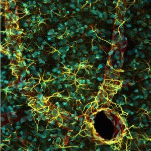 Piąta nagroda:  kora mózgowa szczura; widoczne są jądra komórkowe (kolor turkusowy), astrocyty (GFAP, kolor żółty) i naczynia krwionośne (EBA, kolor czerwony). Autor: Madelyn May, Hano, NH, U.S.A. Technika: mikroskopia konfokalna